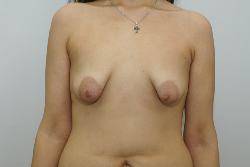 фото грудь без сосков
