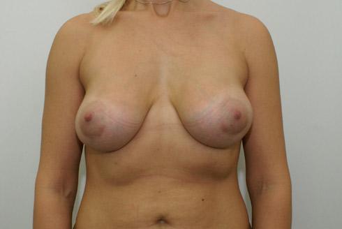 Оральный секс увеличивает грудь.
