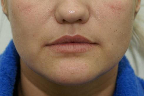 Липосакция губ