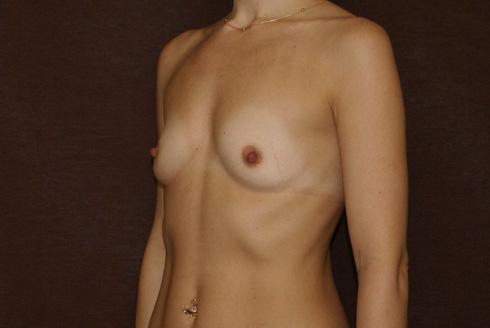 маленькая обвисшая грудь фото