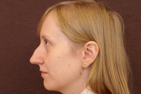 Прически которые скрывают нос с горбинкой